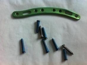 Операция по удалению пластины из руки. Удаление металлоконструкций после перелома лодыжки, снятие пластины и спиц