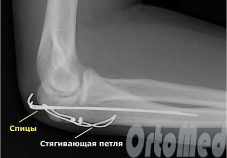 Перелом локтевого отростка, лечение, операция, реабилитация ...