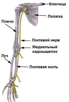 Туннельный синдром локтевого сустава: лечение, симптомы