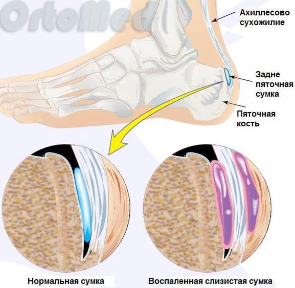 анатомия пяточной кости