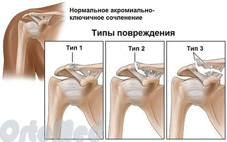 Частичный надрыв ключично-акромиального сочленения плечевого сустава аппарат на голеностопный сустав цена