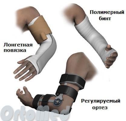 лечение перелома локтевого отростка