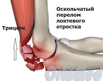 оскольчатый перелом локтевого отростка