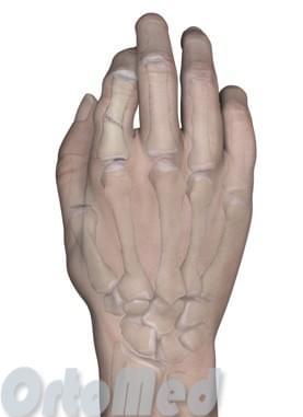 Перелом фаланги пальцев кисти: признаки, симптомы, лечение ...