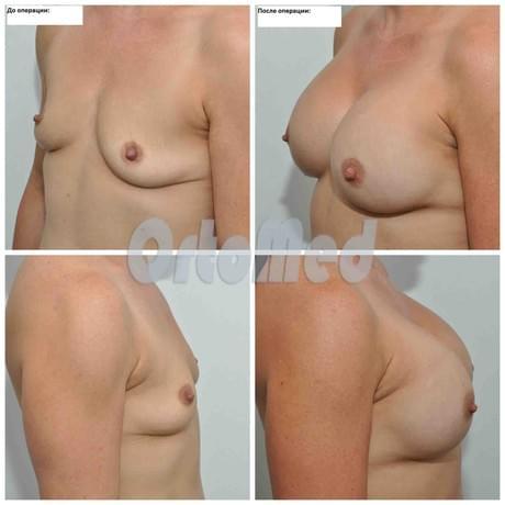 Витамин е увеличение груди отзывы