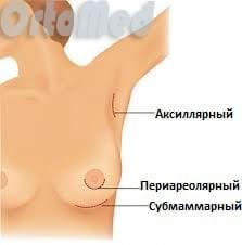 Увеличение груди днепропетровск цена