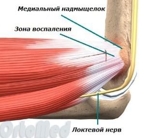 Медиальный эпикондилит локтевого сустава