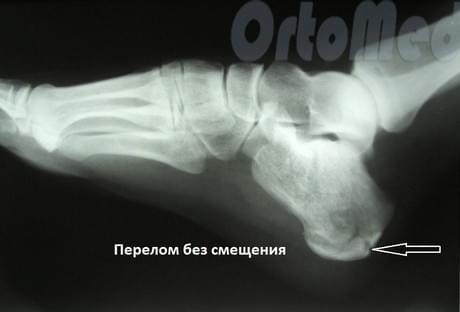 Перелом пятки: симптомы, лечение, операция, реабилитация | Гипс ...