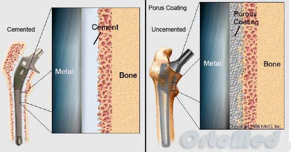 цементное и бесцементное эндопротезирование тазобедренного сустава