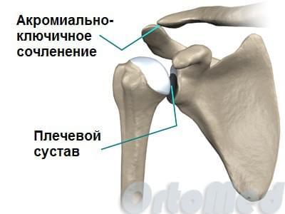 Разрыв акромиальной связки плеча