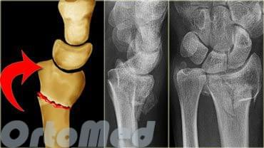 Перелом лучевой кости руки в типичном месте, со смещением ...