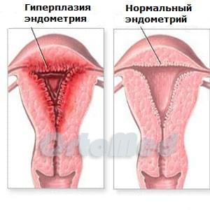 Гетероплазия матки
