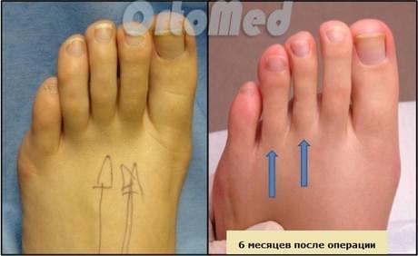 операция по уменьшению длины пальцев ног