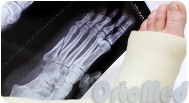 Перелом плюсневой кости стопы, симптомы лечение, реабилитация ...