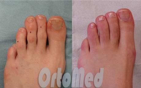 уменьшение длины пальцев ног