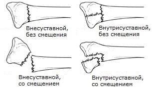 Перелом лучевой кости