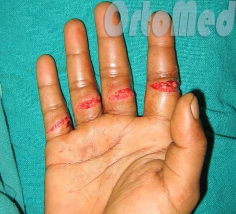 Как сделать травму руки в домашних условиях