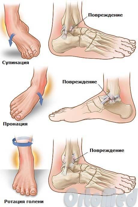 Голеностопный сустав образован как лечить суставы эвкалиптом во внутрь