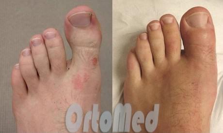 до и после операции по уменьшению пальцев