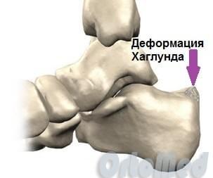 Нарост на пяточной кости сзади