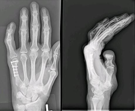 Перелом пятой кости кисти со смещением фото