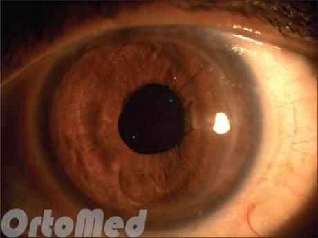 Процент зрения после операции катаракты