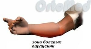 симптомы медиального эпикондилита