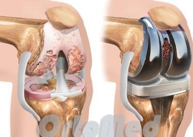Имплант коленного сустава фирмы zimmer где делать операцию на коленном суставе
