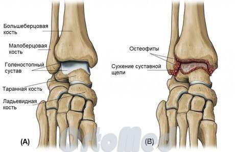 артрит сочленения костей стопы Артрит стопы: симптомы, лечение артрита стопы