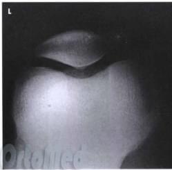 Изображение - Вывих коленного сустава операция patella_axialxray