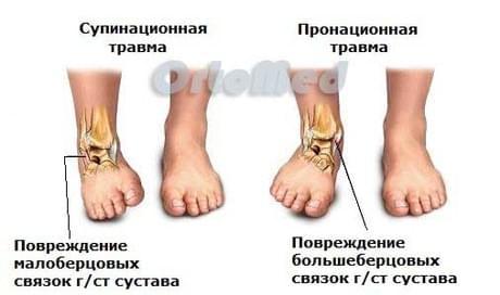 Повреждение большеберцовых связок голеностопного сустава болит колено какой врач