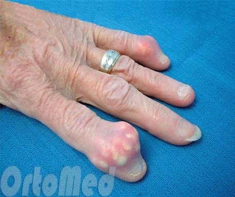 осложнения подагрического артрита