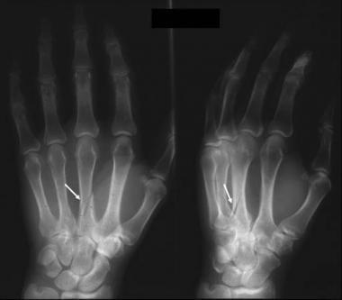 переломы тела пястной кости