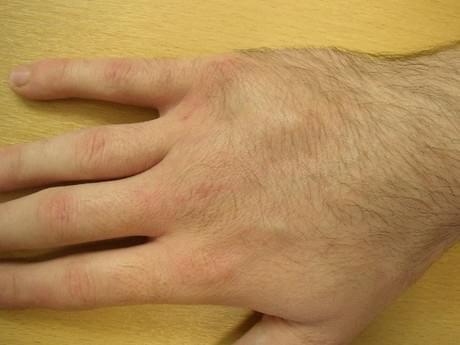 симптомы перелома пястной кости