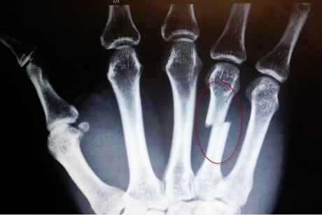Перелом пястной кости со смещением и без: симптомы, лечение ...