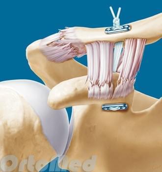 Отрыв ключицы от сустава чем отличается узи от мрт суставов