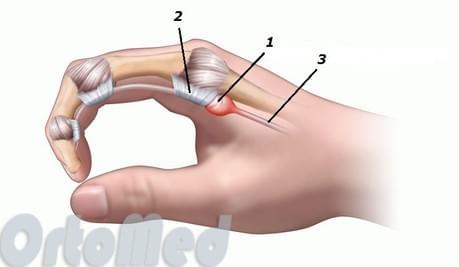 Палец щелкает сустав в фаланге лфк в восстановительный период при переломах коленного сустава