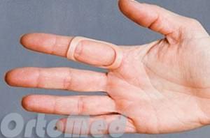 Как вылечить самостоятельно грибок ногтей на ногах