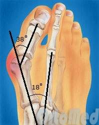 Вальгусная деформация стопы, шишка на большом пальце | Халюкс ...