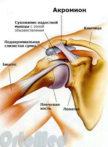 Лечение тендинита плеча, аратроскопия плечевого сустава, анатомия ...