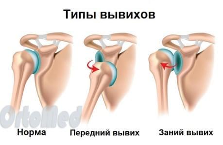 Вывихи крупных суставов должны вправляться вывих плечевого сустава клиника