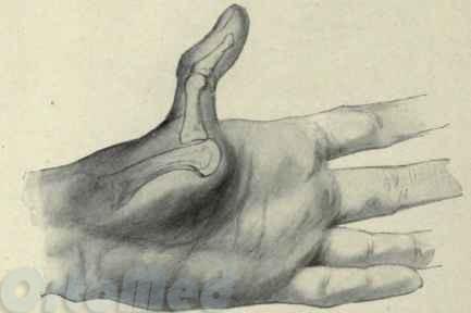 растяжение сустава указательного паль