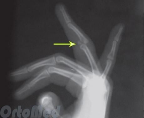 Вывих сустава пальца руки: симптомы, признаки, лечение Вправить выбитый большой палец